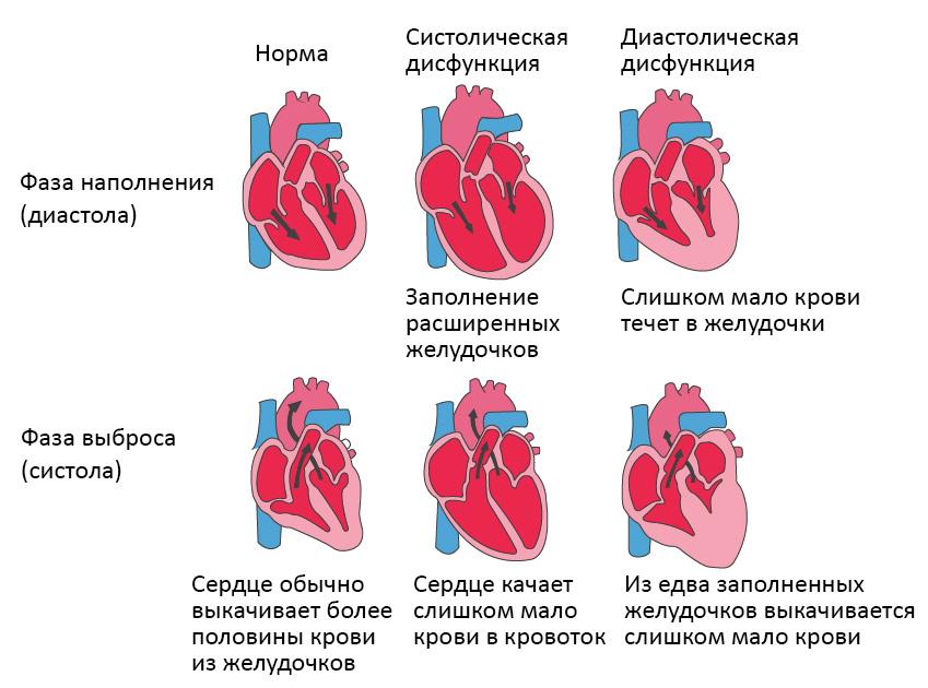 Типы сердечной недостаточности, диастола и систола