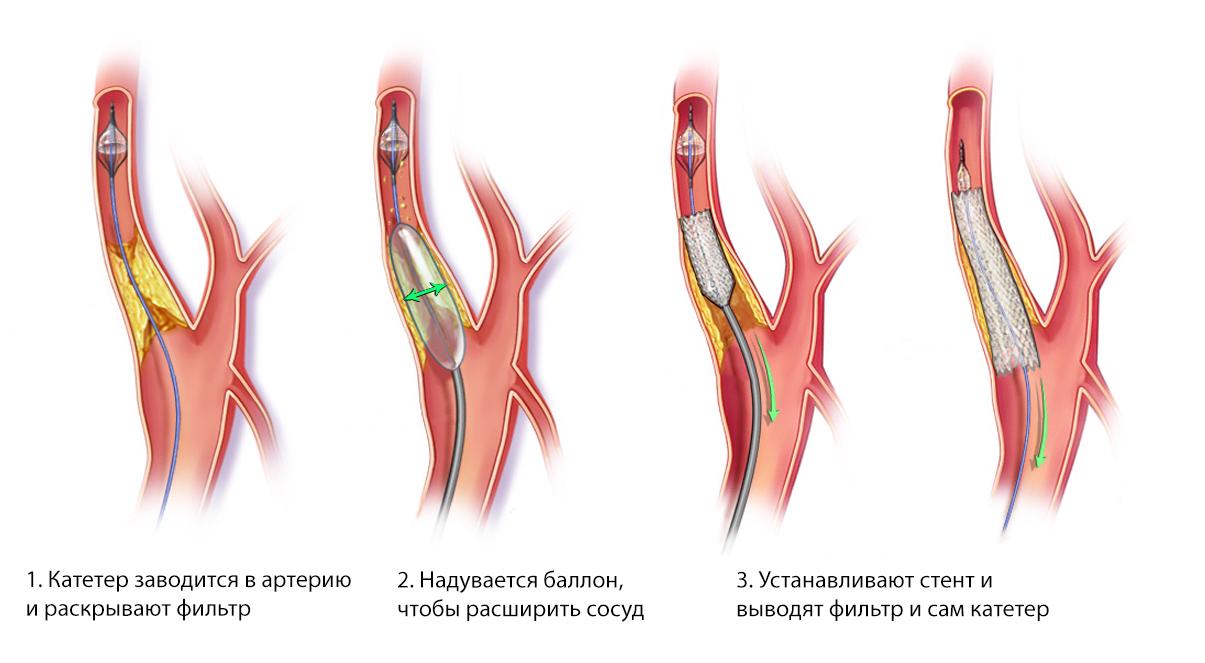 Этапы установки стента
