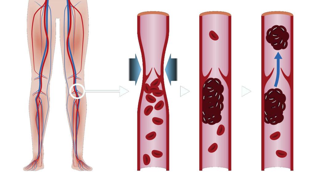 Схема образования тромбов